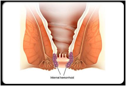 Afectiunile peritoneului, afectiuni anale